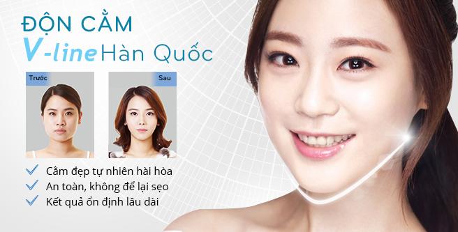 Độn cằm V-line Hàn Quốc – Giải pháp hoàn hảo cho dáng cằm V-line thanh tú