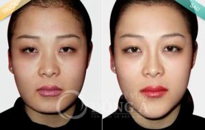 Hình ảnh trước và sau độn cằm tại Thẩm mỹ viện Đông Á