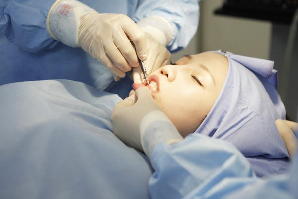 Phẫu thuật độn cằm bao lâu hết sưng? Hỏi & đáp chuyên gia
