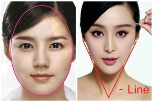 Sự khác nhau giữa khuôn mặt trái xoan và V-line